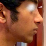 RHINOPLASTY AFTER TWO MONTHS